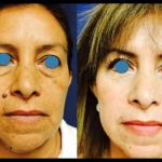 rejuvenecimiento con células madre en León
