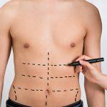 lipoescultura para marcaje de abdomen en León